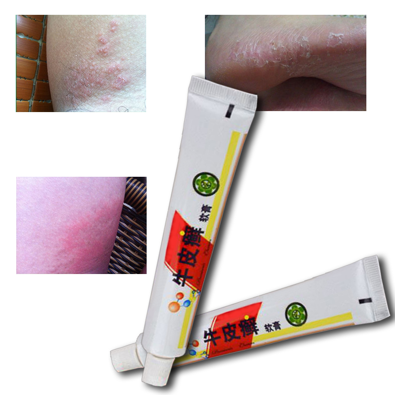 Skin care Professional cure psoriasis eczema rashes ointment original from vietnam native medicine ingredient security