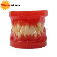 Orthodontic Model -28pcs