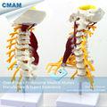 CMAM VERTEBRA02 Luxury Life size Cervical Muscle and Nerve Model Spine Vertebrae Models Cervical Vertebra