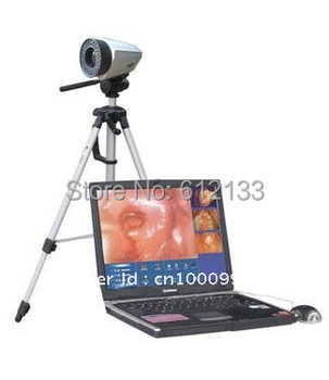 Digital Electronic Colposcope Resolution 800,000 pixels with Digital Camera High Qaulity