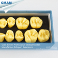 CMAM DH419 4x Life Size Human Oral Dental Permanent Teeth Model