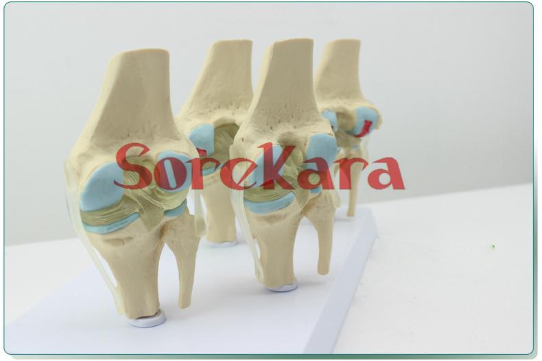 Human Skeleton Anatomical Knee Joint Disease Model Set Anatomy Medical Professional For School &amp; Hospital<br><br>Aliexpress