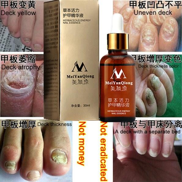 Fungal Nail Treatment Essence Nail and Foot Whitening Toe Nail Fungus Removal Feet Care Nail Gel Free Shipping(China (Mainland))
