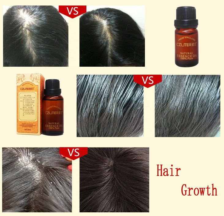All natural hair growth products – Your cool haircut photo blog