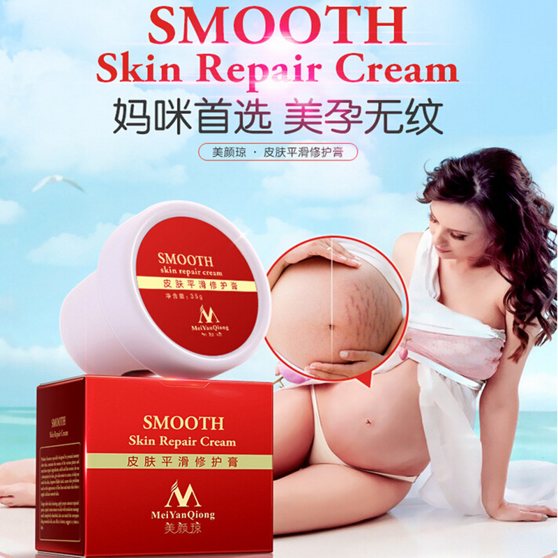 MeiYanQiong Precious Skin Body Cream stretch marks remover and scar removal powerful postpartum obesity pregnancy cream(China (Mainland))