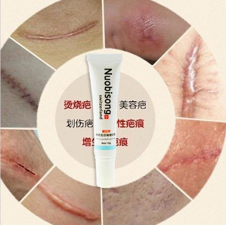 Nuobisong lanbena face anti care acne treatment cream scar removal oily skin Acne Spots skin care face stretch marks maquiagem(China (Mainland))
