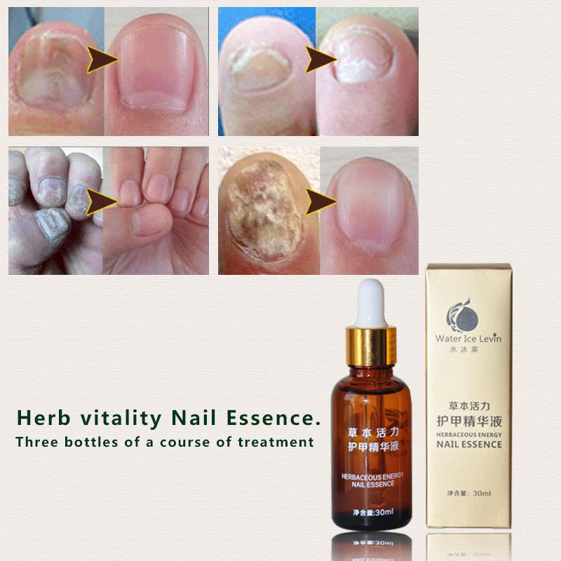 2017 New Nail Tools Fungal Nail Treatment Essence Nail and Foot Whitening Toe Nail Fungus Removal Feet Care No sawing to nail