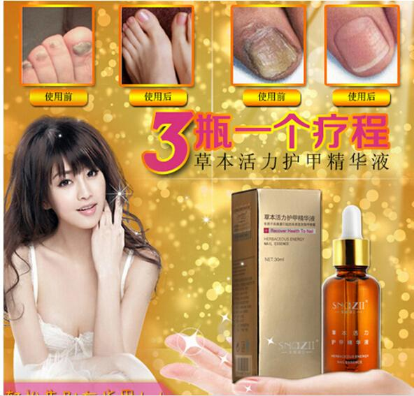 AFY Fungal Nail Treatment Essence Nail and Foot Whitening Oil for Cuticle Toe Nail Fungus Removal