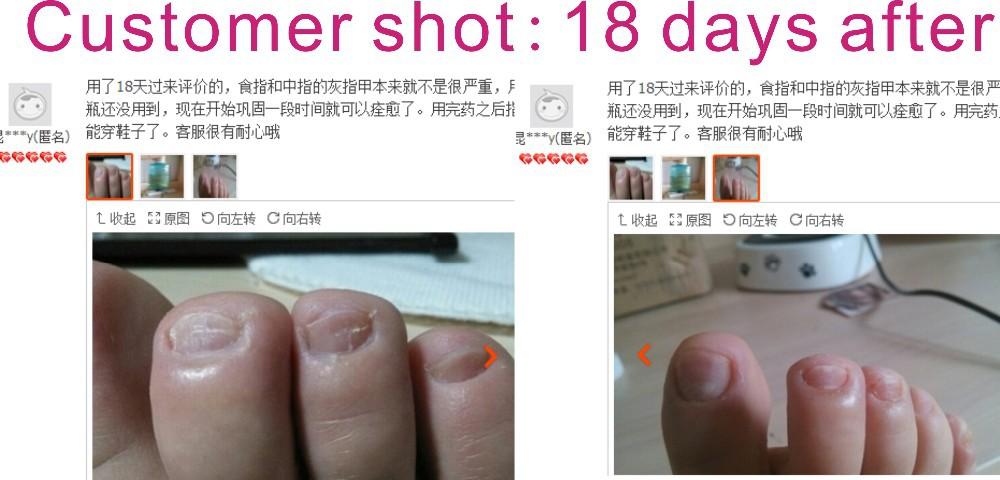 Гематома на ногте лечение