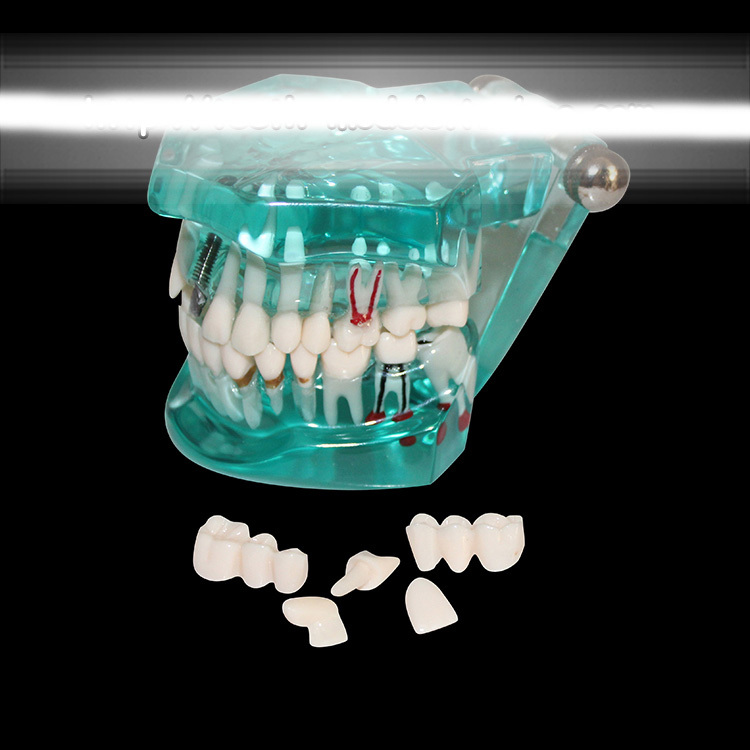 Dental pathology model Dental caries dental plaque planting tooth model Dental Implant teaching Model