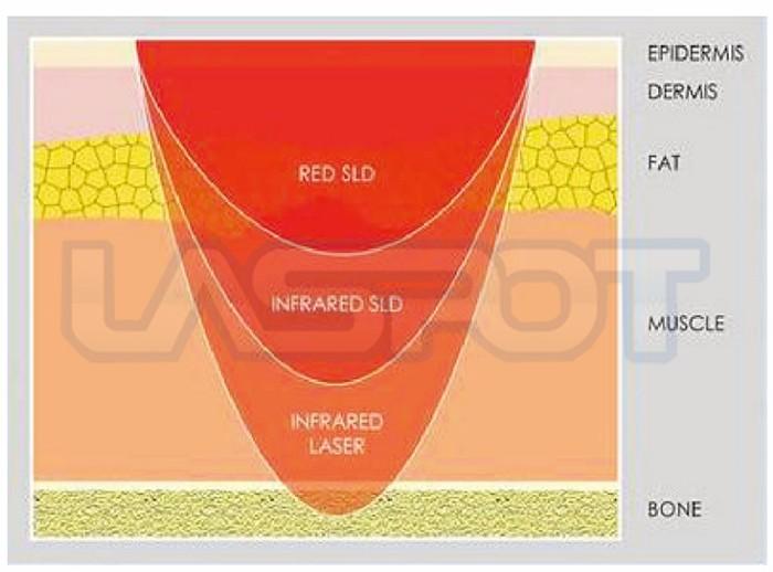 Neck back Pain Laser Treatment Device Power Adjustable Pain management laspot(China (Mainland))