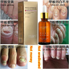 100%Original SnazII Fungal Nail Treatment Essence Nail and Foot Whitening Toe Nail Fungus,ProfessionRemoval Feet Care Nail Gel