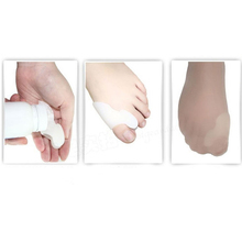 3Pair Hotsale Beetle crusher Bone Ectropion Toes outer Appliance Professional Technology Health Care Products
