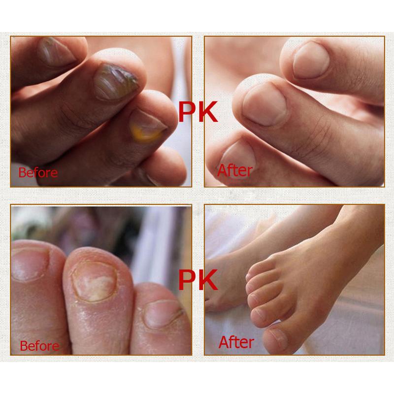 2pcs Fungal Nail Treatment Essence Nail and Foot Whitening Toe Nail Fungus Removal Feet Care Nail