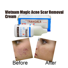 Vietnam Pimple Scar Cream Acne Spots Treatment Stretch Marks Remove Acne Face Essential Oil Acne Scar Removal Cream(China (Mainland))