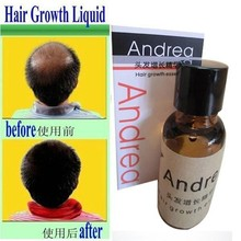free shipping  Andrea Hair Growth anti Hair Loss Liquid 20ml dense hair fast sunburst hair growth grow  invalid refund alopecia