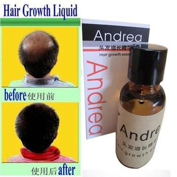Andrea Hair Growth anti Hair Loss Liquid 20ml dense hair fast sunburst hair growth grow invalid refund alopecia