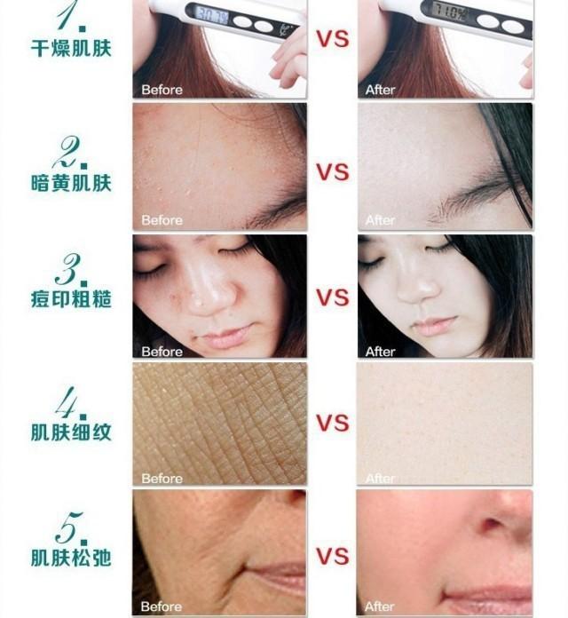 Afy улитка крем для лица для ухода за кожей лечение-бесплатная уменьшить шрамы прыщей прыщи отбеливание улитки антивозрастной крем