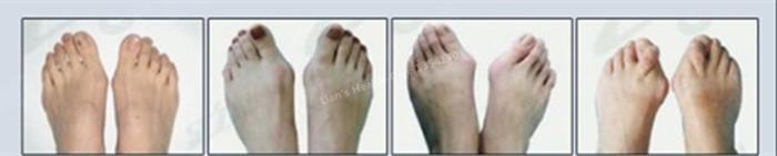 הרגל Hallux Valgus במתקן רפואי סיליקון ג ' ל הבוהן מפריד תפיחת מגן כאב השומר רגל אכפת לי Corretivo תיקון