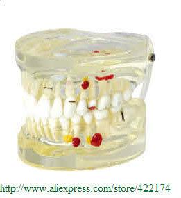 Здесь можно купить  Free Shipping Pathological Model dental tooth teeth anatomical anatomy dentist model  Офисные и Школьные принадлежности