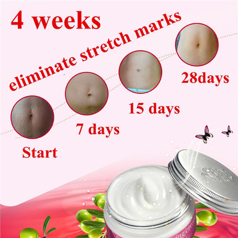 Beauty Mom 100g Pregnancy Repairing Cream Repair Scar Abdomen Stretch Marks Postpartum Slack Line Dsmv a Potent Obesity Abdomen
