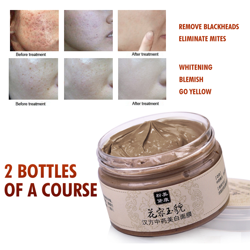 Skin Care Facial Mask Acne Scars Remove Blackhead Mite Treatment Whitening Moisturizing Chinese herbal medicine Freckle120g(China (Mainland))