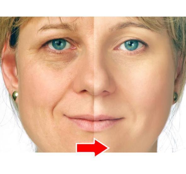 Argireline Collagen original liquid rejuvenation anti wrinkle anti-aging remove canthus lines Moisturizing plant extract cream(China (Mainland))
