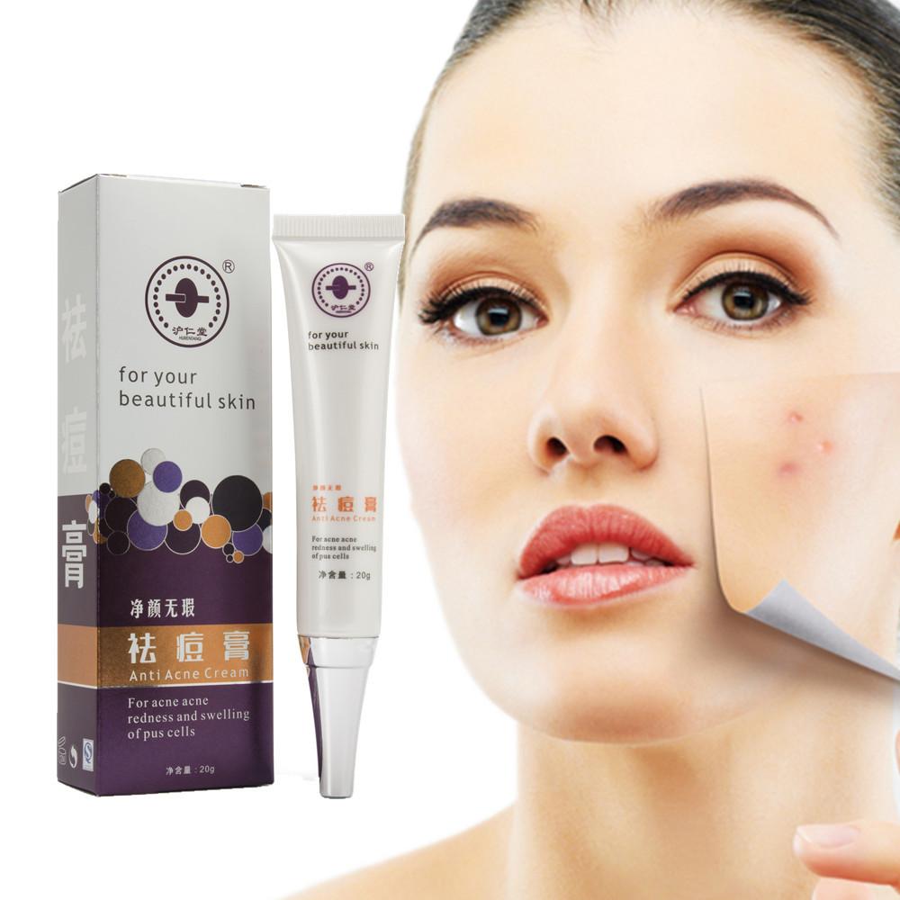 acne treatment cream face care whitening moisturizing shrink pores remove acne marks comedo. Black Bedroom Furniture Sets. Home Design Ideas