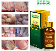 Fungal Nail Treatments Herbal Essence Nail and Foot Whitening Toe Nail Fungus Removal Feet Care Nail Gel Free Shipping