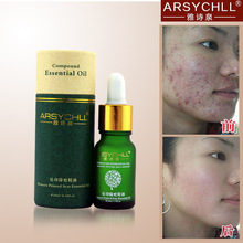 Face Care Acne Scar Removal Cream Acne Spots Skin Care Treatment Stretch Marks Whitening Remove Acne Face Essential Oil Care(China (Mainland))