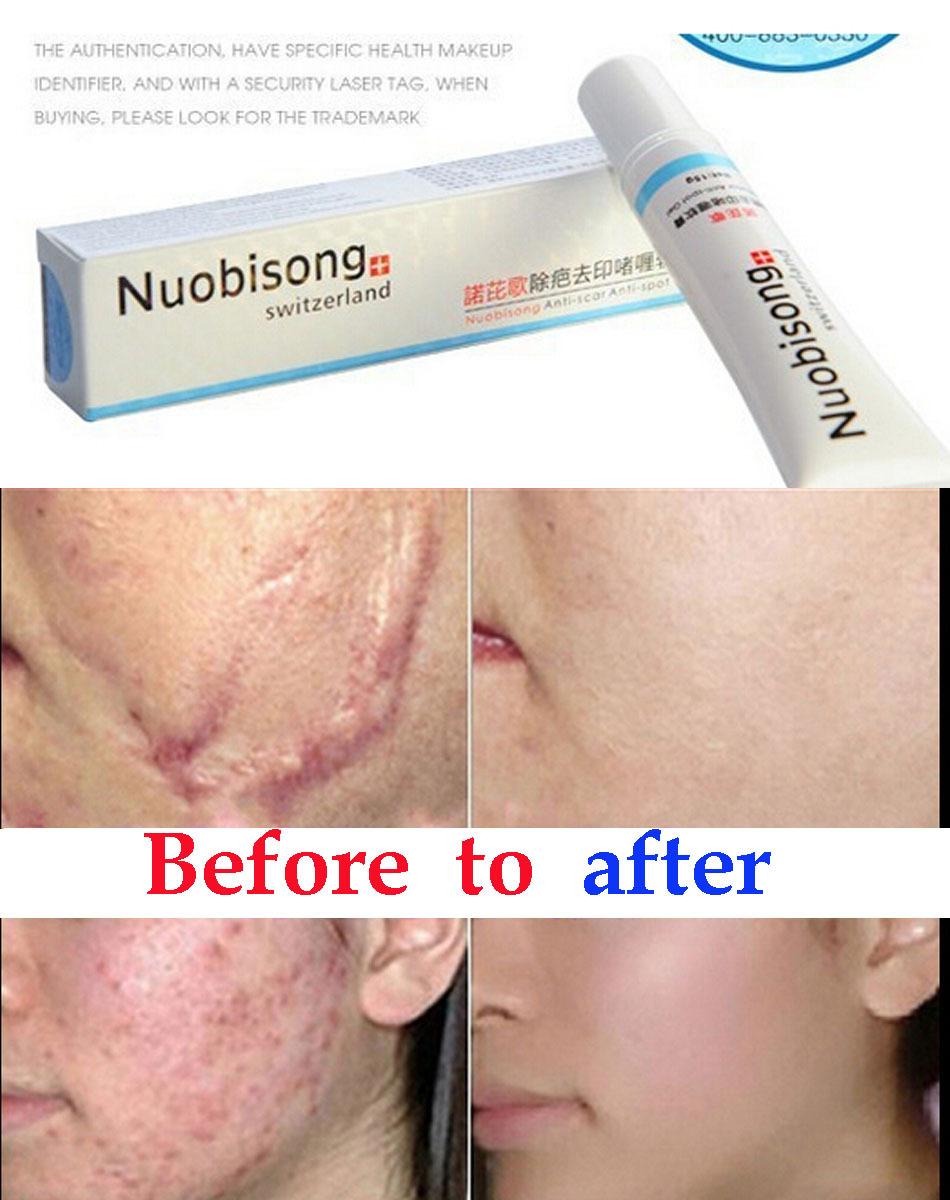 acne facial naperville il