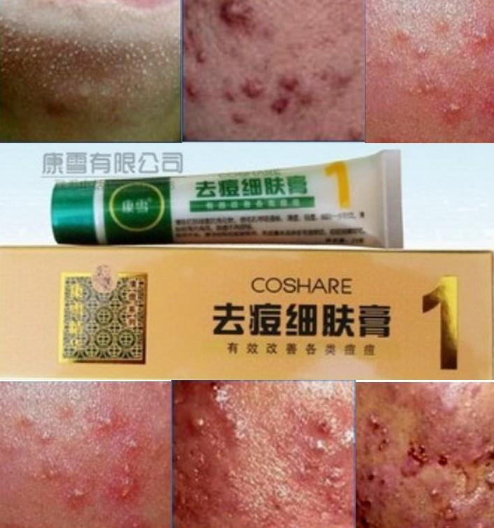 Kill the virus mite net pox acne acne acne acne whitening 1(China (Mainland))