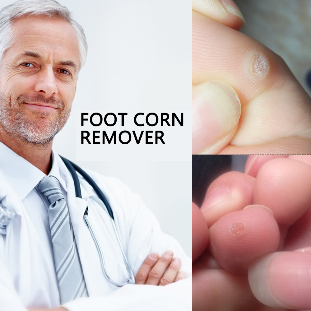 Foot Corn Remover Plaster Detox Foot Pad Patches Medical Patch Relieving Blisters & Corn Friction Pain Foot Care Tools C027