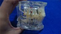 стоматологической патологии зубов модель стоматологические материалы Стоматологическая поставки оборудование учебные модели зубов