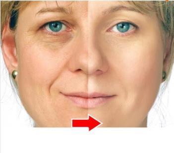 Аргирелин жидкость creotoxin коллагеновая против морщин против старения морщин удалить ...