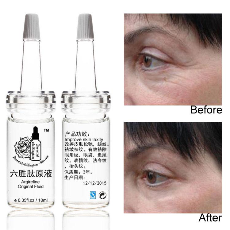 Essential oils kingdom 100% pure plant Benzoin Oil 10ml Vietnam imports Restore elasticity body oil dry oil Sore throat, asthma
