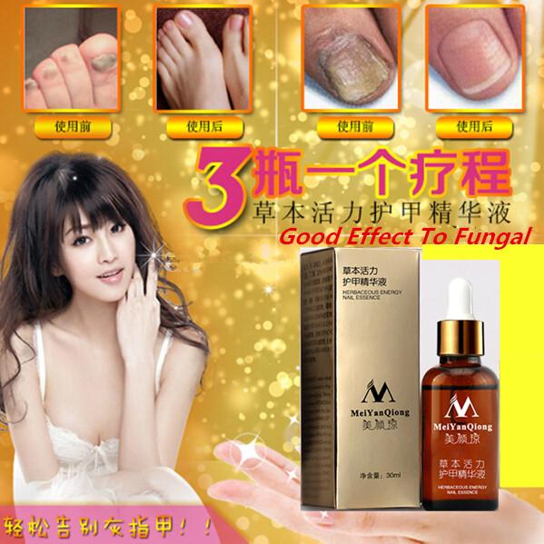 Fungal Nail Treatment Essence Nail and Foot Whitening Toe Nail Fungus Removal Feet Care Nail Gel Free Shipping 1pcs(China (Mainland))