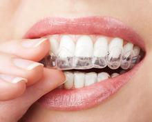 2 Пара Термоформования Стоматологические Отбеливание Зубов Лотки Отбеливание Отбелить Зубы Каппы Капы Гигиены Полости Рта(China (Mainland))