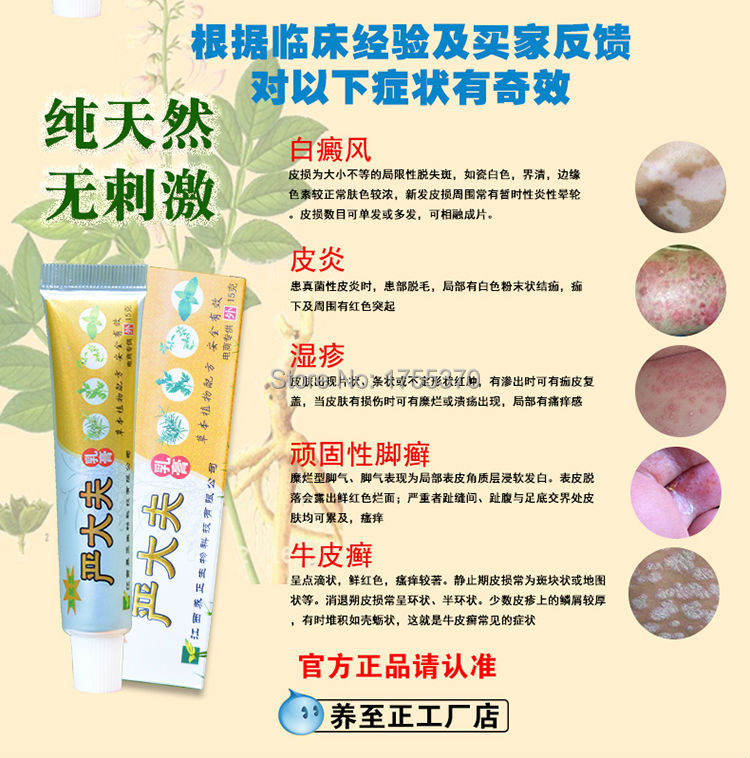 Chinese Herbal Psoriasis Antibacterial Ointment For Ringworm Tinea Jock Itch Athlete's Foot Fungus Pedis Eczema Dermatitis  Chinese Herbal Psoriasis Antibacterial Ointment For Ringworm Tinea Jock Itch Athlete's Foot Fungus Pedis Eczema Dermatitis  Chinese Herbal Psoriasis Antibacterial Ointment For Ringworm Tinea Jock Itch Athlete's Foot Fungus Pedis Eczema Dermatitis  Chinese Herbal Psoriasis Antibacterial Ointment For Ringworm Tinea Jock Itch Athlete's Foot Fungus Pedis Eczema Dermatitis  Chinese Herbal Psoriasis Antibacterial Ointment For Ringworm Tinea Jock Itch Athlete's Foot Fungus Pedis Eczema Dermatitis  Chinese Herbal Psoriasis Antibacterial Ointment For Ringworm Tinea Jock Itch Athlete's Foot Fungus Pedis Eczema Dermatitis  Chinese Herbal Psoriasis Antibacterial Ointment For Ringworm Tinea Jock Itch Athlete's Foot Fungus Pedis Eczema Dermatitis  Chinese Herbal Psoriasis Antibacterial Ointment For Ringworm Tinea Jock Itch Athlete's Foot Fungus Pedis Eczema Dermatitis  Chinese Herbal Psoriasis Antibacterial Ointment For Ringworm Tinea Jock Itch Athlete's Foot Fungus Pedis Eczema Dermatitis  Chinese Herbal Psoriasis Antibacterial Ointment For Ringworm Tinea Jock Itch Athlete's Foot Fungus Pedis Eczema Dermatitis  Chinese Herbal Psoriasis Antibacterial Ointment For Ringworm Tinea Jock Itch Athlete's Foot Fungus Pedis Eczema Dermatitis  Chinese Herbal Psoriasis Antibacterial Ointment For Ringworm Tinea Jock Itch Athlete's Foot Fungus Pedis Eczema Dermatitis