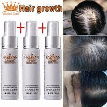 3 флакона средства от выпадения волос, ускоряет рост волос и активирует рост новых волос. Обладает лечащим эффектом.(China (Mainland))