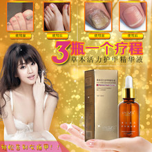 Fungal Nail Treatment Essence Nail and Foot Whitening Toe Nail Fungus Removal Feet Care Nail Gel Manicure Free Shipping