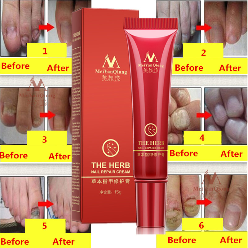 Herbal Nail Treatment Onychomycosis Paronychia Anti Fungal Nail Infection Good Result Chinese Herbal Toe Nail Fungus Treatment