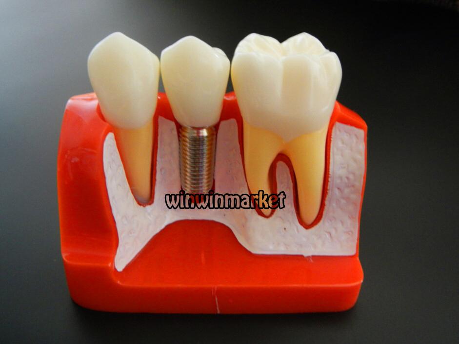 Зубные импланты оптом