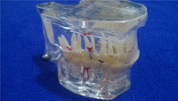 2015 стоматологической патологии исследование анализ демонстрации модель зубов с восстановлением
