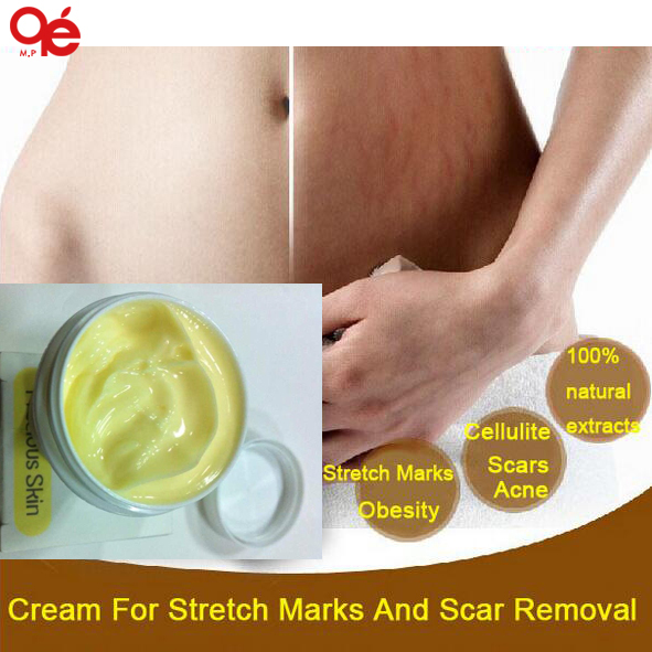Cream For Stretch Marks And Scar Removal Powerful To Stretch Marks Maternity Skin Body Repair Cream Remove Scar Care Postpartum