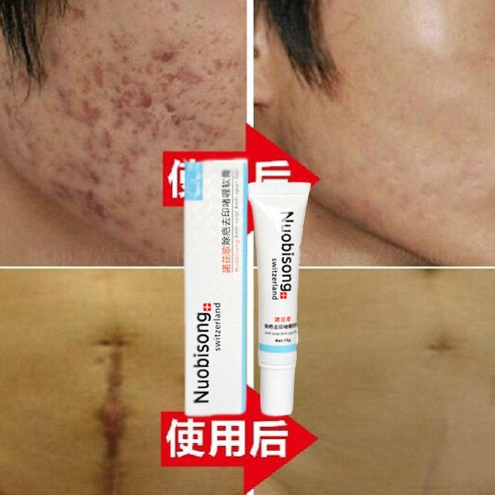 2015 New Arrivals Nuobisong face care acne scar removal cream Acne Spots skin treatment whitening stretch marks - @Online shops store