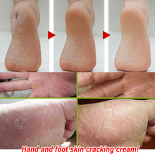 Feet Care Anti Cracking Moisturizing Cream (Dry peeling, bleeding, pain) Dry type hand foot tinea Chinese medicine cream(China (Mainland))